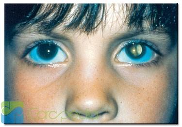 Waspada, gangguan katarak pada mata anak