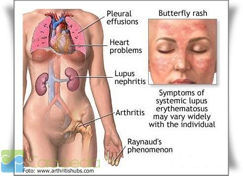 Tentang Penyakit Lupus Kesehatan Carapedia