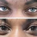Tren Implan Iris Mata Untuk Ubah Warna Mata Permanen