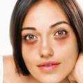 4 Jenis Kantung Mata dan Penyebabnya